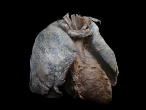 1200px-heart_and_lungs